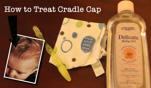 Get rid of Cradle Cap