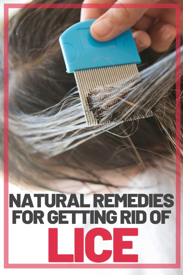 natural remedies getting rid of lice